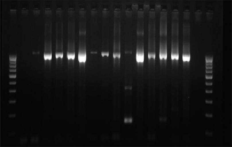 Figure 1: Gel picture of 16SrRNA amplicons obtained after nested polymerase chain reaction from CSF samples. Lane 1 and 18: 100 bp DNA ladder; Lane 2: Negative control; Lane 3: Positive control Pneumococcal DNA (1024 bp); Lane 4 to 16: Samples positive for 16S rRNA gene; Lane 17: Samples negative for 16S rRNA gene